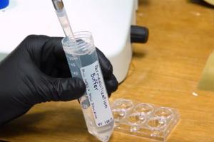 Quantifying mRNAs With SM-FISH